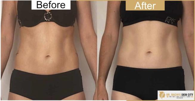 Bdr Rachi S Skin City Bikini Zone Hair Removal Treatment Best