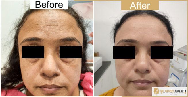 Dr  Rachi's Skin City | Hifu-Non- Surgical Face Lift