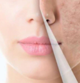 Dr  Rachi's Skin City | Thread Face Lift (Pdo Threads